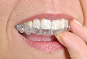 mouth Invisalign
