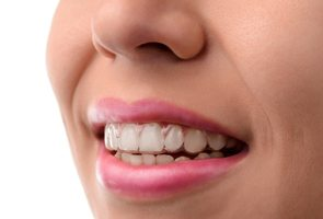 A woman with clear aligners