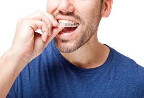 man inserting Invisalign