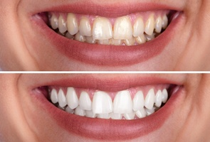 before and after teeth whitening in Wharton